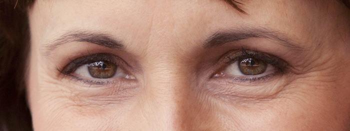 Người có tuổi có vùng da mắt lão hóa