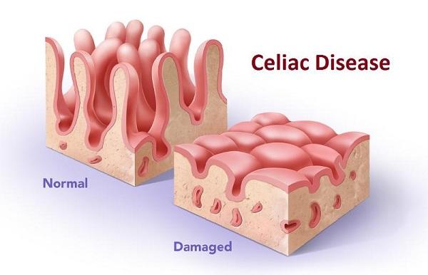 Bệnh Celiac ảnh hưởng như thế nào tới làn da?