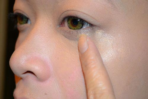 Mắt có bọng mỡ