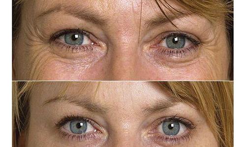 Cách xóa nếp nhăn vùng mắt hiệu quả