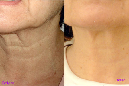 Công nghệ PLASMA –X-LITE đượcchứng nhận mang lại hiệu quả xóa nhăn và trẻ hóa da vùng cổ cao nhất hiện nay.