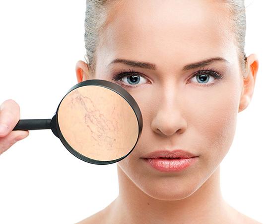 Biểu hiện của giãn mao mạch dưới da