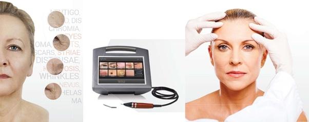 ứng dụng công nghệ Plasma trong y tế và thẩm mỹ